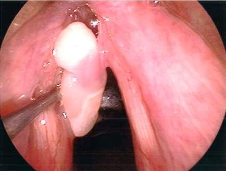 Vocal Cord Polyp Chicago Voice Care